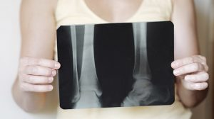 osteoporosis-stop-the-summer-fractures