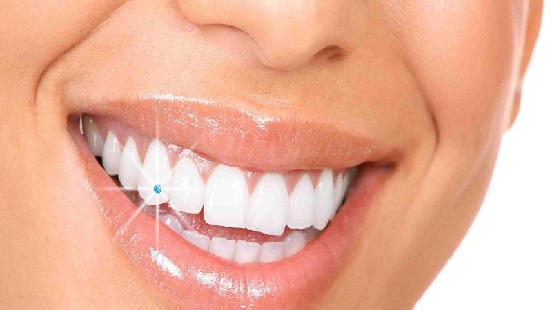 dental decorations