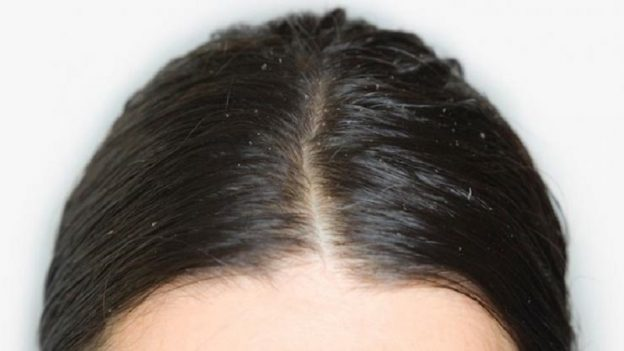 Reduce Hair Fat